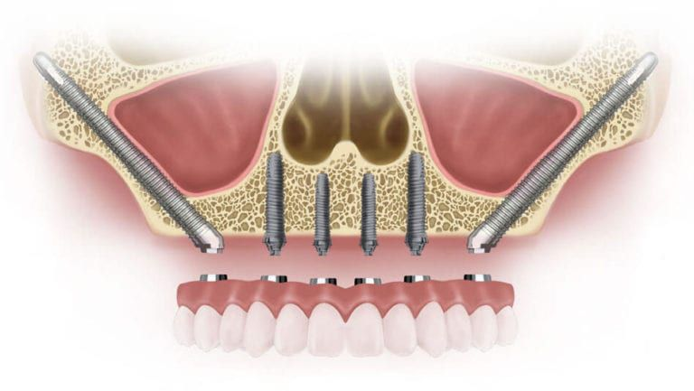 Zygomatic Implants Pearlfection Dentistry
